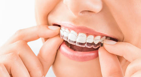 Complimentary Orthodontics Consultation