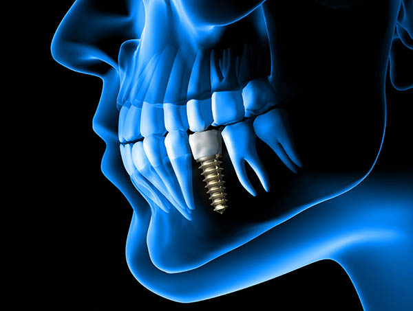 Dental Implant Explanations