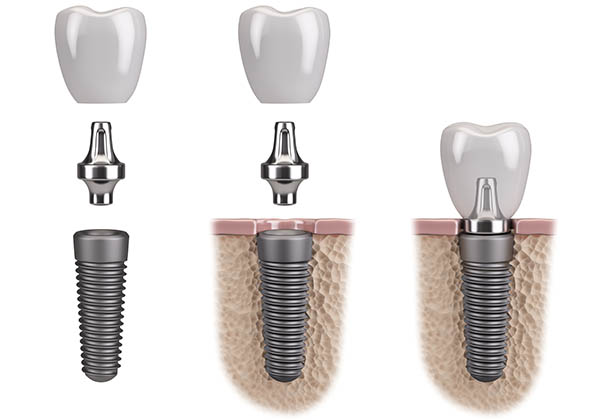 The Stages of Implant Therapy