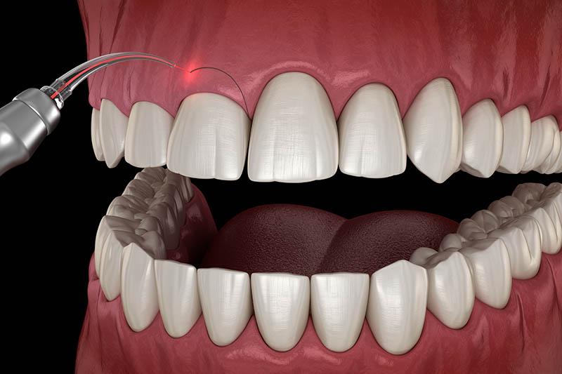 Laser Gum Conturing