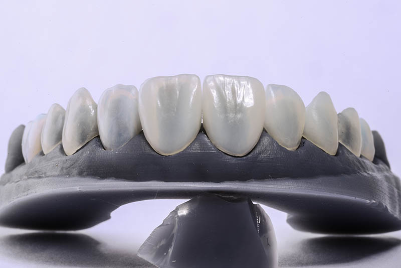 Step 3 of Porcelain Veneers: The Preparation Appointment & Your Temporaries